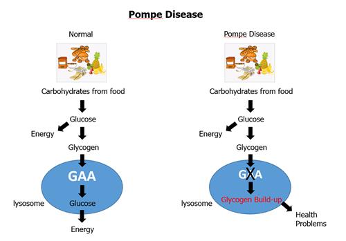 Pompe Disease Image