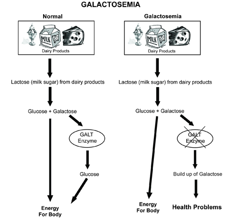 Galactosemia diagram