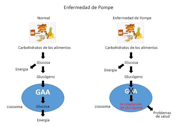 Pompe flowchart