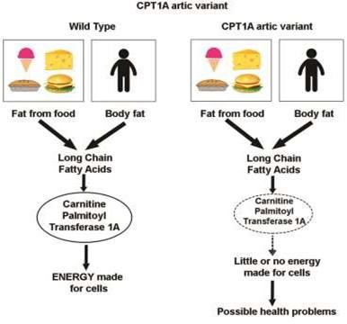 CPT1A Arctic Variant Diagram