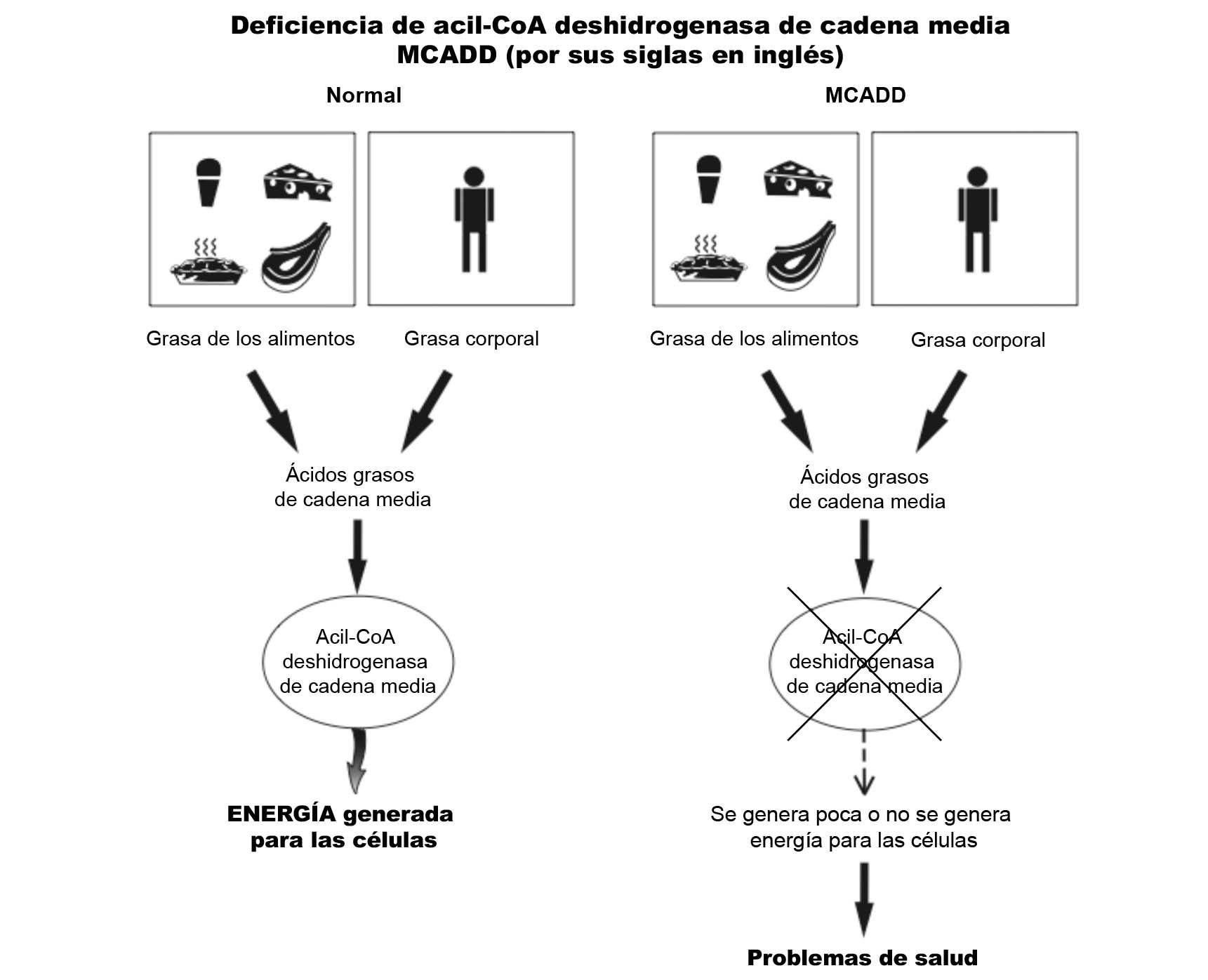 MCADD Diagram