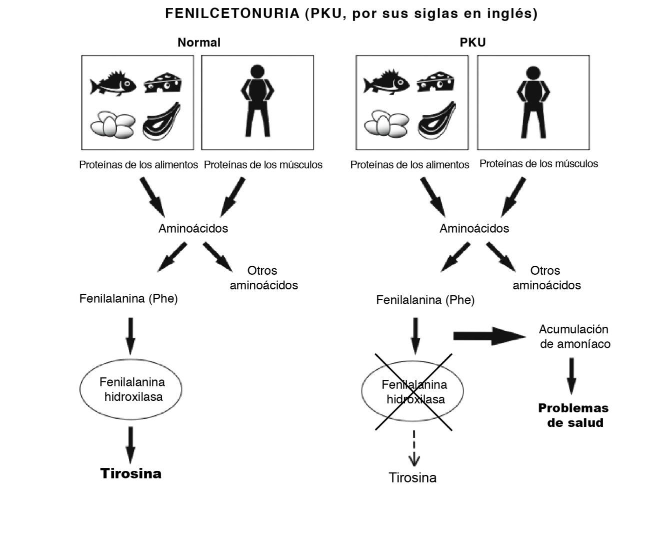 Phenylketonuria Diagram