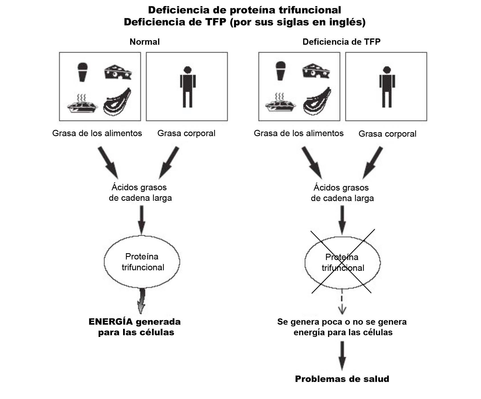 TFP Deficiency Diagram