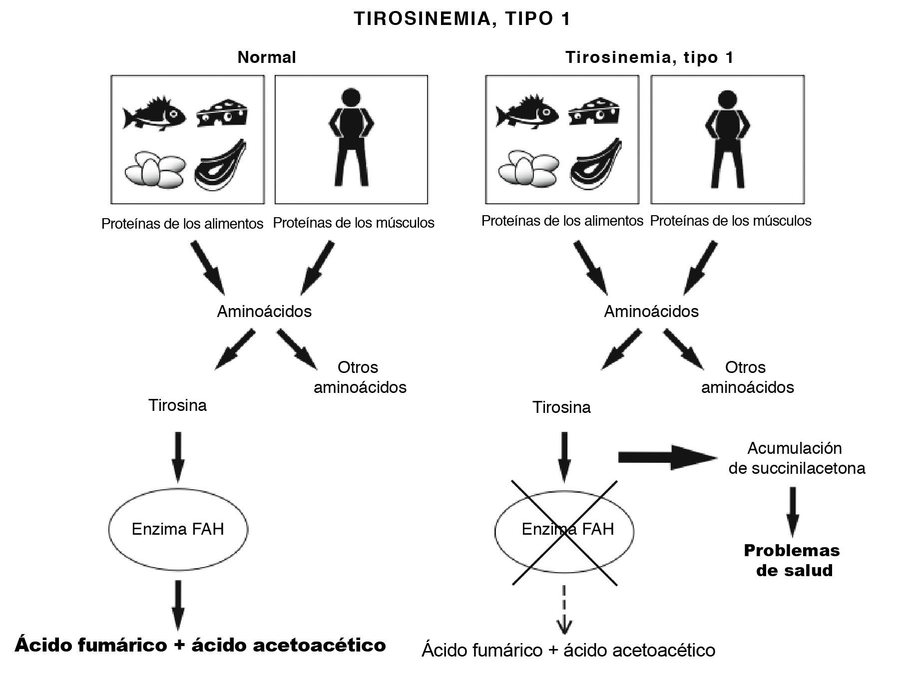 Tyrosinemia Diagram