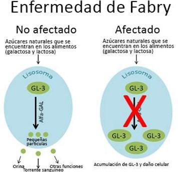 Image of Fabry Disease